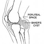 What is a Baker's Cyst?
