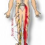 Acupuncture for Sciatic Nerve Pain
