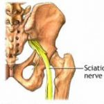 Making Progress with Sciatica Pain