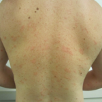Did Detoxing Cause a Bout of Pityriasis Rosea?
